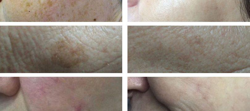 Tratamientos para manchas en la piel